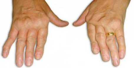 Синдром Фелти: симптомы, диагностика, лечение, клинические рекомендации